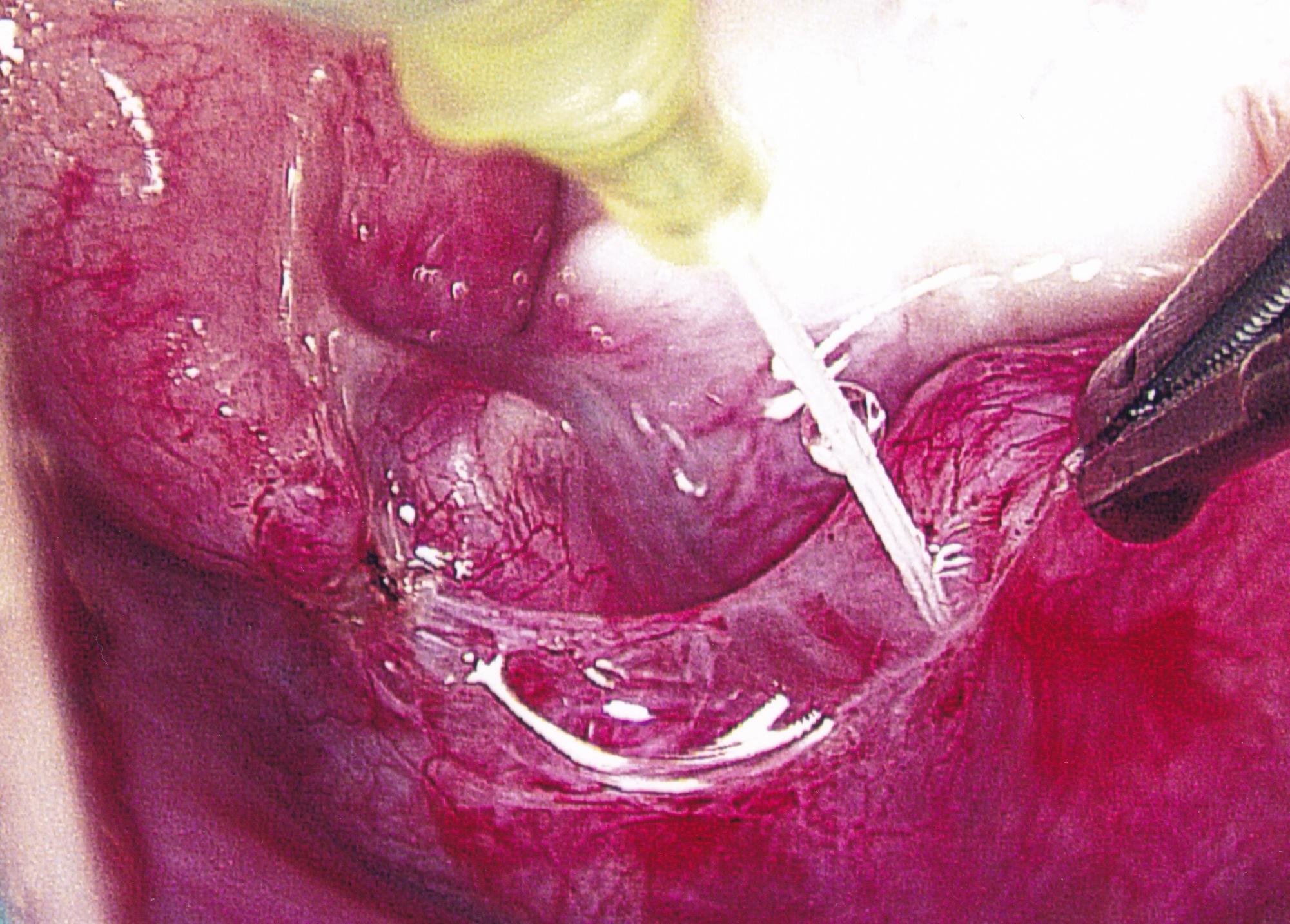 tubal reversal method dr pabon tubal reversals